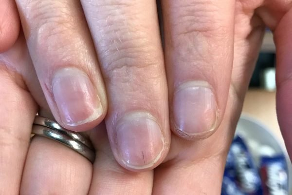 Nails and health: This is what yellowed nails and 'nail