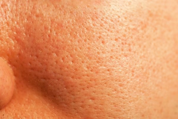 From big pores to clogged ones: Every single question you've ever had about your pores, answered.